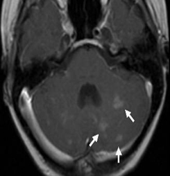 Follow-up MRI from a brain tumor patient