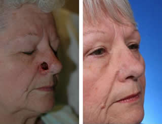 Before and after nasal reconstruction