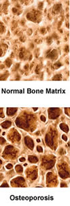 Normal bone versus Osteoporosis